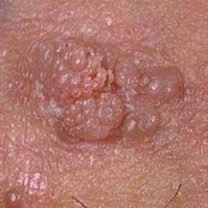 Human Papillomavirus (hpv) In Men Kondylom (medic...