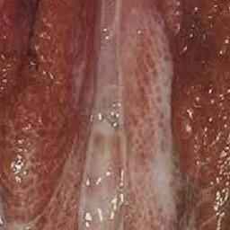 Gonorre kvinna