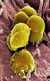 Mycoplasma